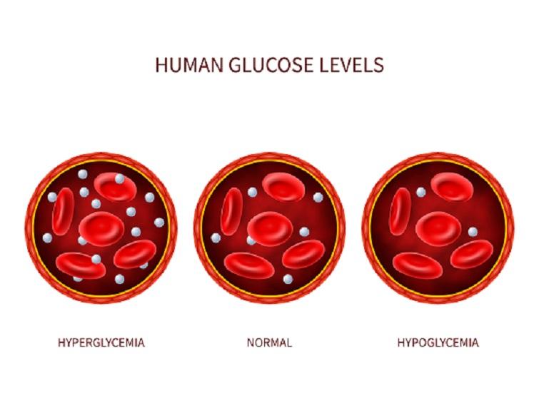 Blood Glucose Fasting